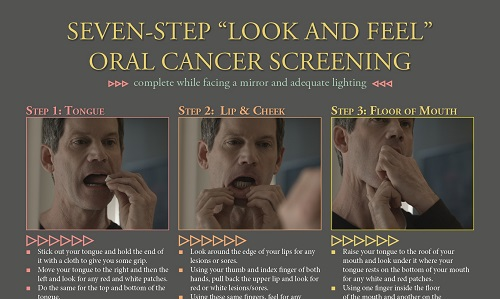 Oral Cancer Guide